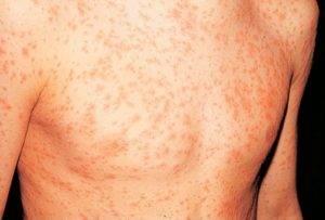 Проявление аллергических реакций
