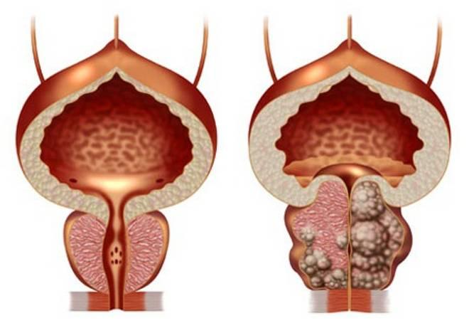 Обострение простатита симптомы и лечение