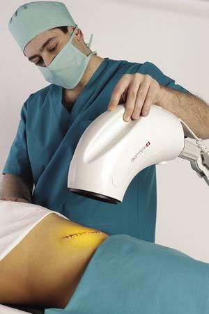 Лампа Биоптрон для лечения простатита как лечить простату лампой Биоптрон