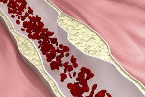 Плохая проходимость крови