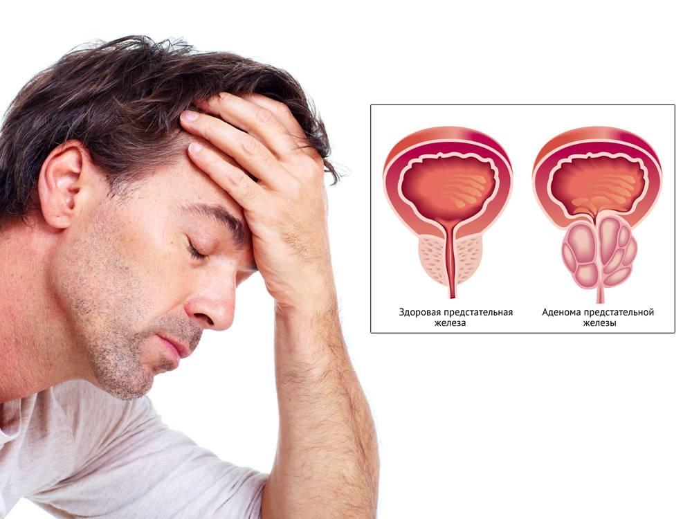 Препараты для профилактики простатита и аденомы простаты