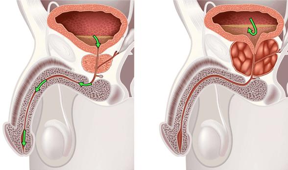Луковая шелуха при аденоме предстательной железы отзывы