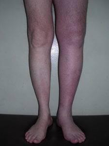 При тромбозе вен, лечить простатит с помощью электроприборов противопоказано