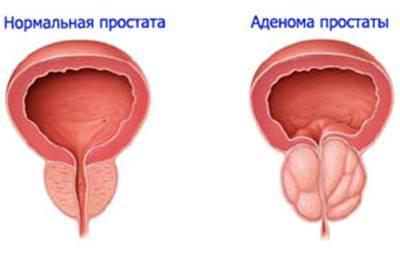 3d модель предстательной железы