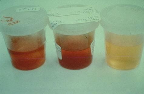 Платная операция на аденоме простаты
