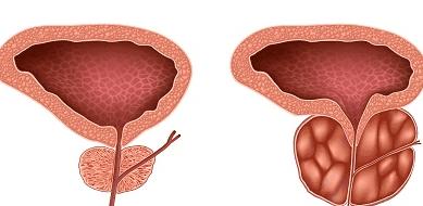увеличена предстательная железа лечение