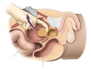 При открытой аденомэктомии выполняется небольшой разрез в нижней части живота, включая рассечение мочевого пузыря, поврежденная ткань убирается пальцами