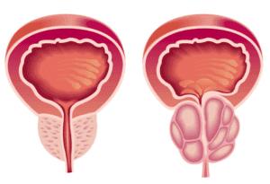 Болезни предстательной железы у мужчин