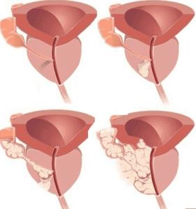 Процесс образования аденоматозных узлов в предстательной железе протекает в 3-х стадиях