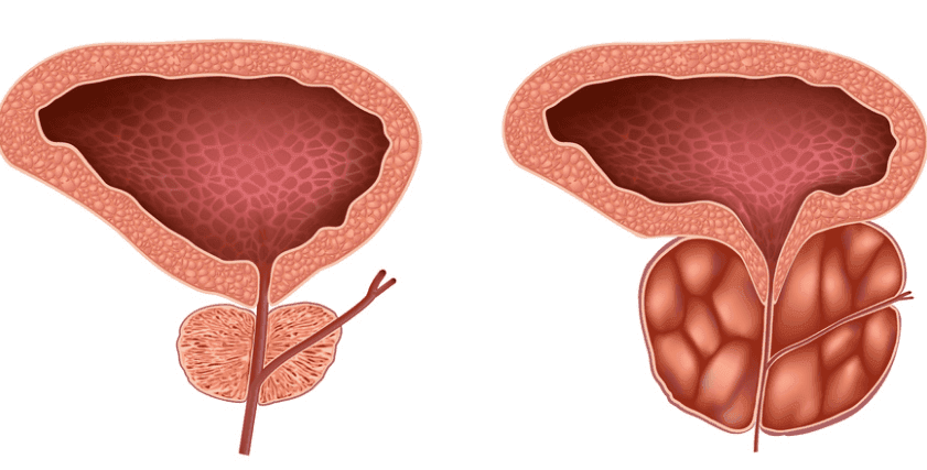 Метастазы рака аденомы простаты