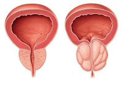 Физиопроцедуры при раке предстательной железы