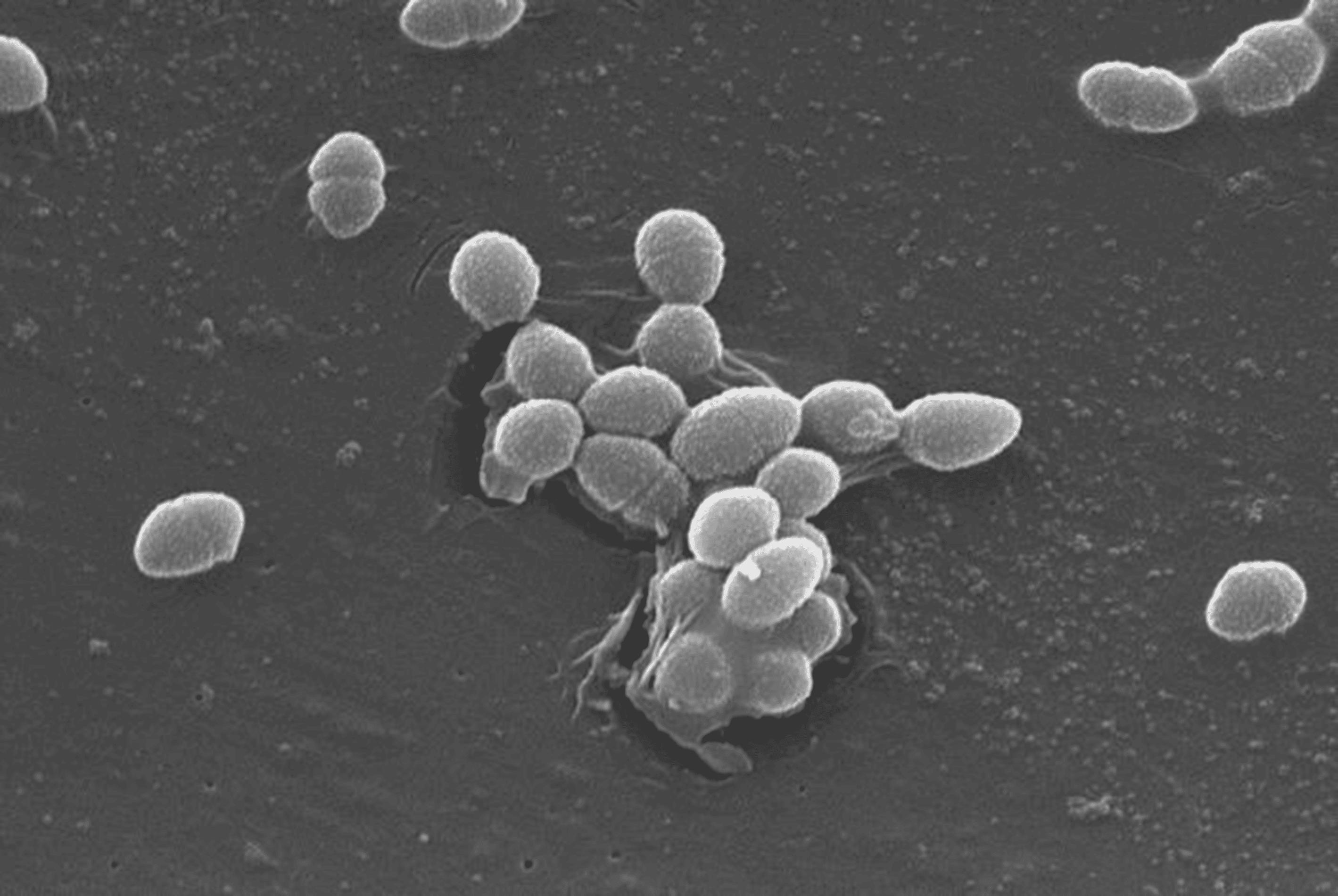 Enterococcus faecalis оральный секс