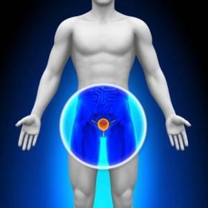Первым сигналом заболевания являются симптомы, которые связаны с затруднениями при акте мочеиспускания, частыми позывами к опорожнению мочевого пузыря