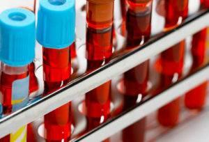 Лабораторные обследования, включающие общий анализ крови, кровь на биохимию.
