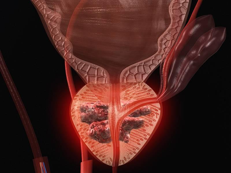 Что такое рак простаты у мужчин