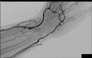 Эмболизация артерий простаты