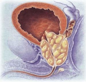 В 90% случаев при отсутствии должного лечения вызывает ишурию поражение предстательной железы, а именно аденома простаты