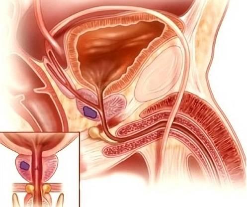 Калькулезные простатиты у мужчин лечение
