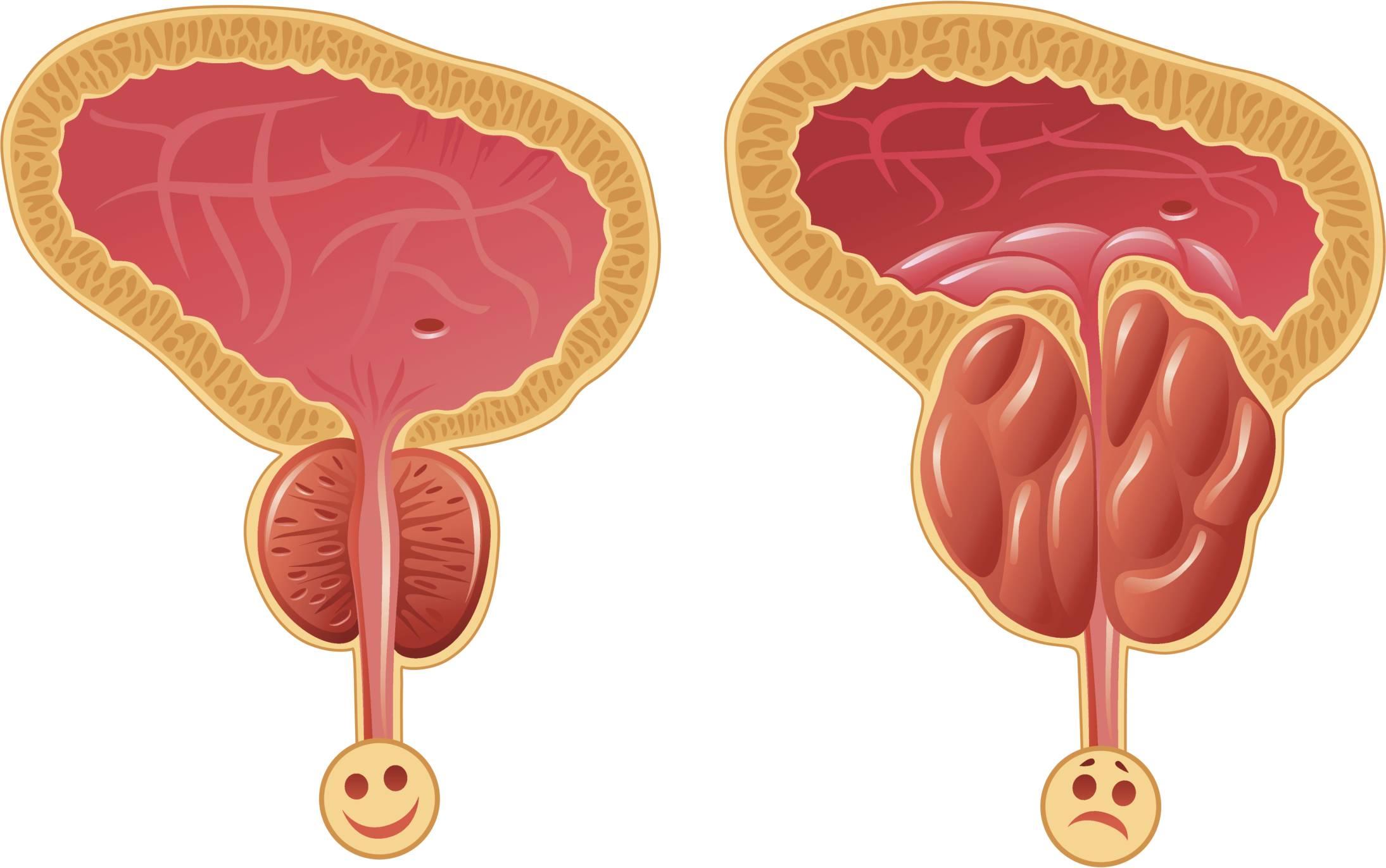 Эффективное лечение простатита, лечение аденомы, препараты 78