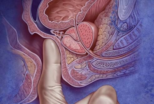Что можно пропить от простатита у мужчин
