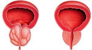 Простата: до и после массажа
