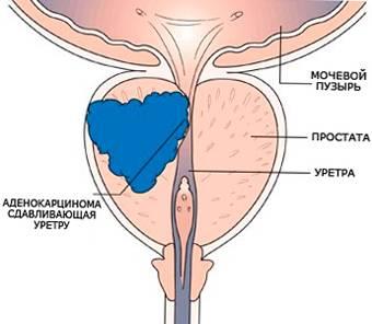Нетрадиционные методы лечения рака предстательной железы