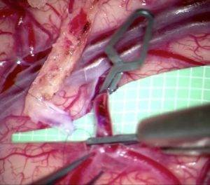 Микрососудистое шунтирование артерий полового члена
