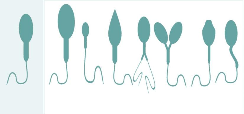 Влияние фокусина на сперматозоиды