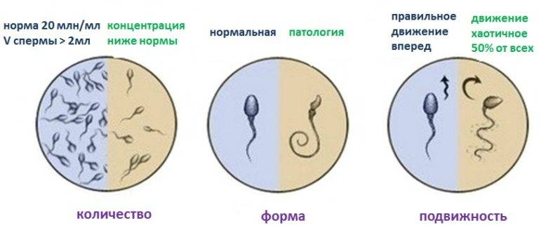 kak-uvelichit-kolichestvo-spermi-pri-eyakulyatsii