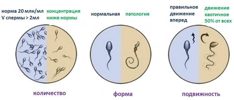 kak-ponizit-virabotku-spermi