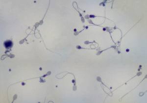 Плохая спермограмма - что делать