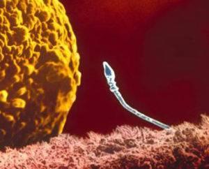 Причины возникновения астенозооспермии