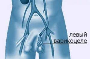 Классификация и виды варикоцеле