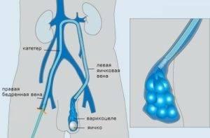 Стадии и степени варикоцеле