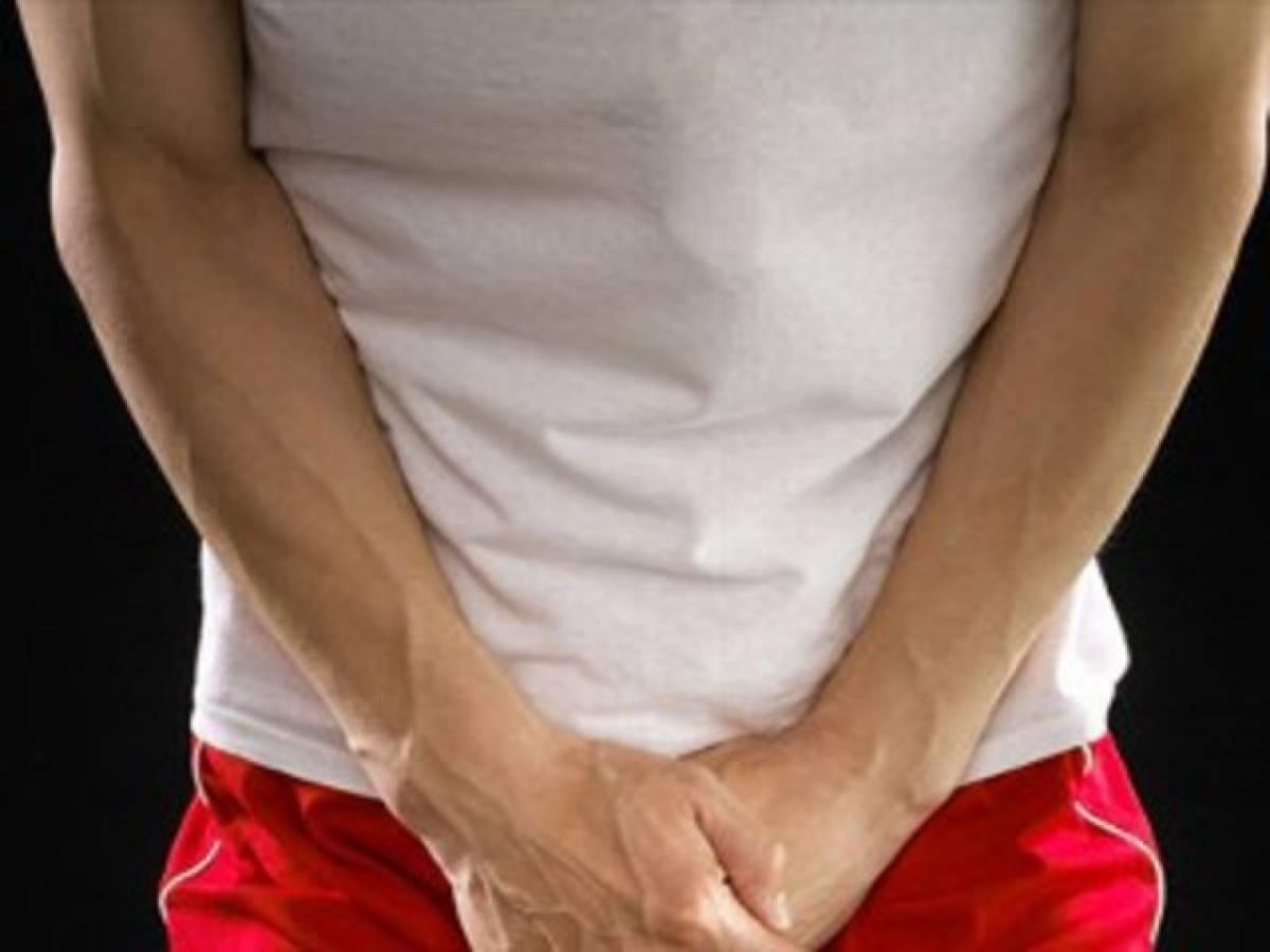 Варикоцеле симптомы у мужчин фото