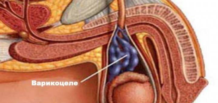 Варикоцеле у мужчин операция стоимость в москве