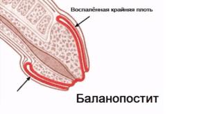 Классификация и виды баланопостита