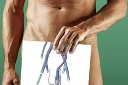 Сексуальная дисфункция и варикоцеле