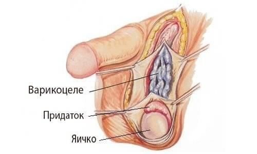 Можно заниматься сексом при варикоцеле