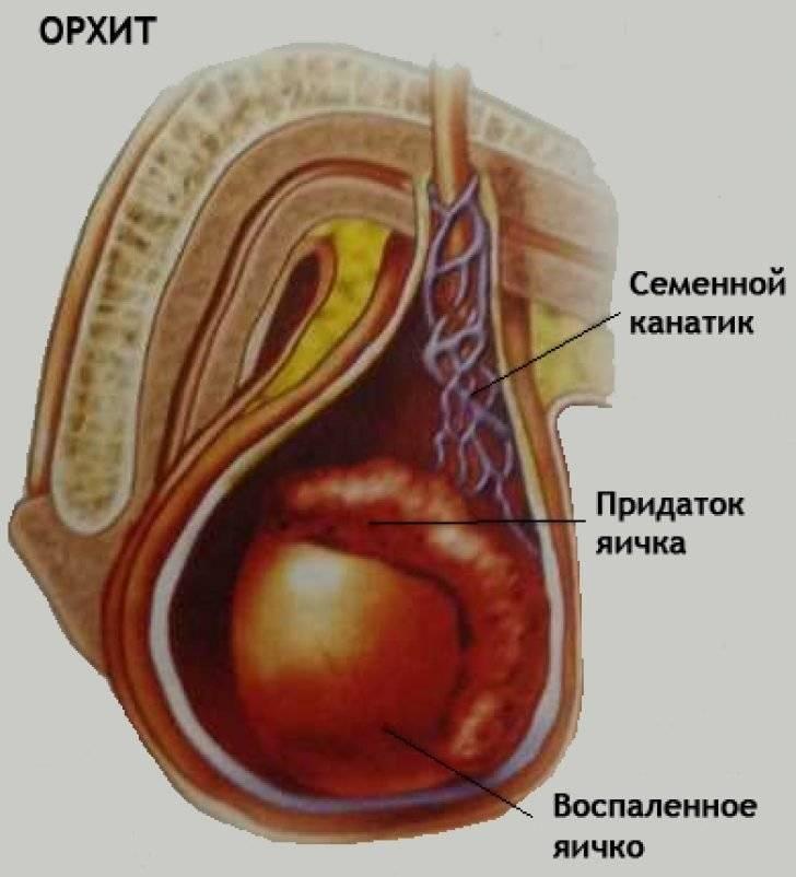 Гипертония сильные головные боли