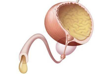 Метод лечения гематоспермия