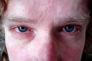 Осложнения и последствия гонореи у мужчин