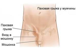 Болит живот (внизу) при цистите и после причины что делать