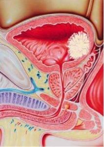 Новообразования в мочеполовой системе