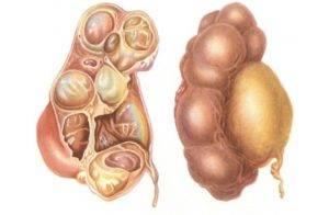 Симптомы и лечение колликулита у мужчин