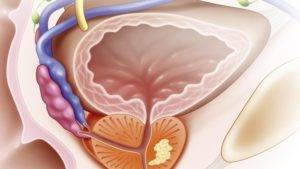 Периуретральный фиброз предстательной железы