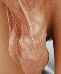 Варикозное расширение вен семенного канатика