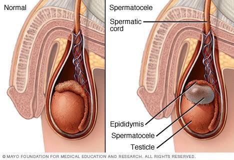 Что такое сперматоцел