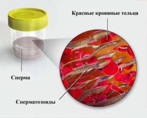 Что такое гематоспермия