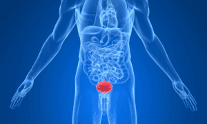 Рак уретры у мужчин